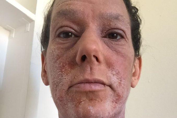 بالصور.. بعد معاناتها لمدة 25 سنة سيدة تخلص نفسها من الإكزيما بالتوقف عن العلاج