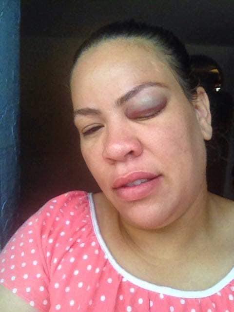 حنان مشاركة برنامج ماستر شيف تتعرض للضرب من قبل مشارك في المسابقة