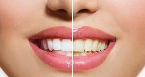 وصفة رائعة لتبييض الأسنان