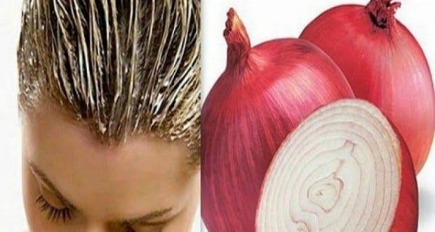 البصل الأحمر لتطويل الشعر ومنع تساقطه