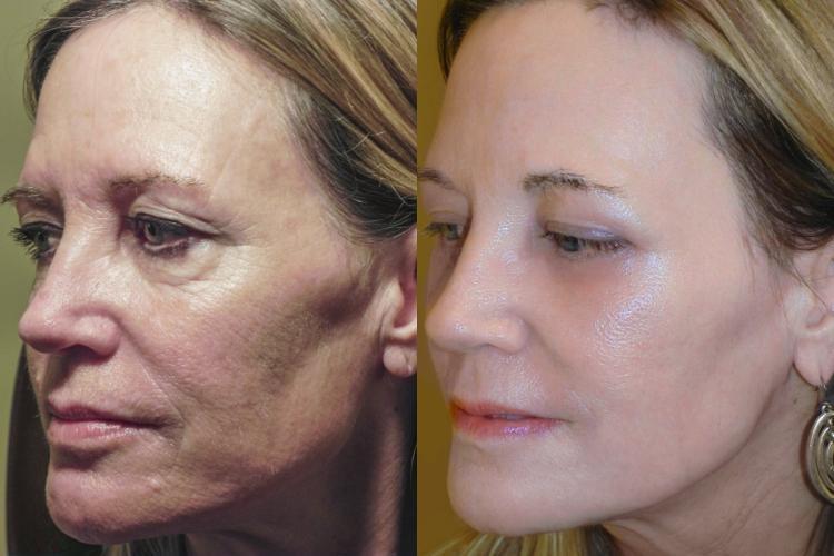 ماسك سحري مجرب لعلاج شحوب الوجه واصفراره واستعادة لمعان