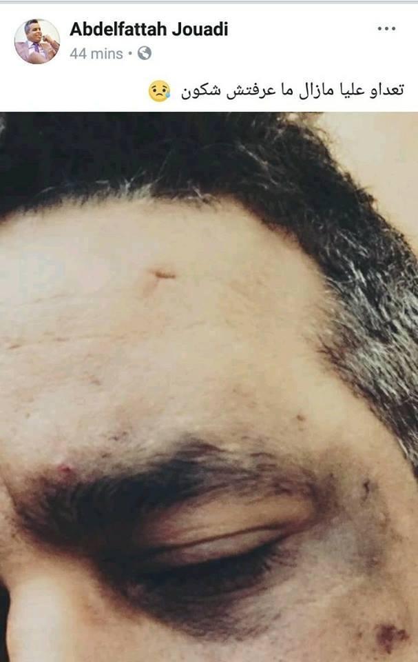 بالصورةالكوميدي عبد الفتاح جوادي يتعرض لاعتداء