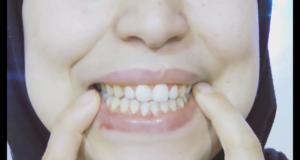 طريقتي في تبييض الأسنان وازالة الاصفرار في دقيقتين بمكونين