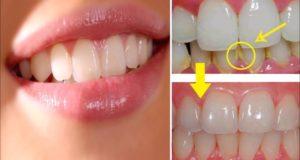 تجربتي للوصفة القنبلة لإزالة الإصفرار من الأسنان ولمعانها و النتيجة من أول استعمال