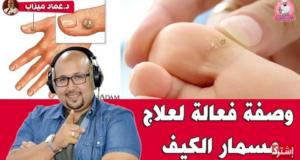طريقة فعالة للقضاء على مسمار الكيف مع الدكتور عماد ميزاب