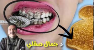 وصفة لن تصدقي أنها فعالة في تبييض الأسنان حتى تجربيها مع الدكتور جمال الصقلي