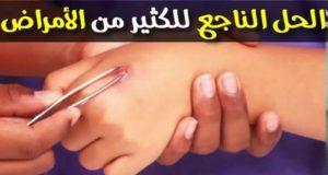 اكتشفي الحل النهائي لجميع الأمراض وحتى المستعصية بإذن الله مع الدكتور محمد الفايد