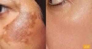 أقوى علاج لإزالة الكلف والتصبغات من الوجه والبقع الداكنة..وصفة طبيعية تخلصك من كل المشاكل