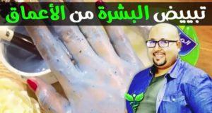 مادة تجهلها معضم المغربيات علاج فعال للتصبغات الكلف والبقع مع الدكتور عماد ميزاب