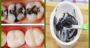 وصفة سحرية خطيييرة لتبييض الاسنان في 5 دقائق فقط بمكونات سهلة موجودة في المنزل