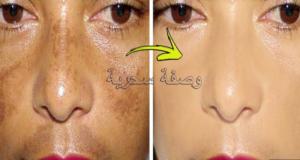 وصفة 7 أيام التي يبحت عنها الجميع لعلاج الكلف والبقع في الوجه