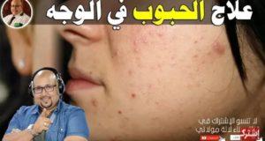 لي كتعاني من الحبوب والطبايع فالوجه هاد الوصفة الطبيعية هي لي كينصح بها الدكتور عماد ميزاب