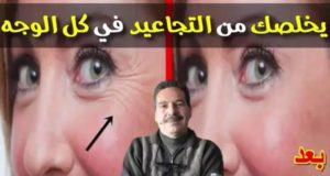 موجود في ثلاجتك يخلصك من تجاعيد الوجه والعين والرقبة مع الدكتور جمال الصقلي