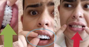 تجربة تركيب أسنان المشاهير بارخص ثمن..شاهدوا الفرق قبل وبعد