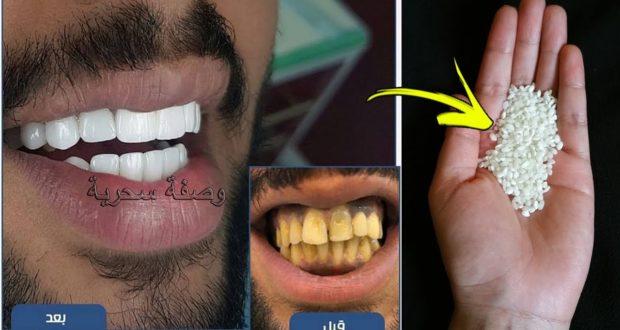ضعي هده الحبات في فمك 3 دقائق فقط ولن تصدقي كيف ستبيض أسنانك وتزيل كل الإصفرار
