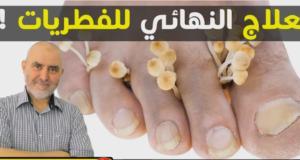 بعيدا عن الأدوية التي تدمر الكبد..الدكتور عابد العلوي يقدم وصفة معجزة لعلاج فطريات الأظافر