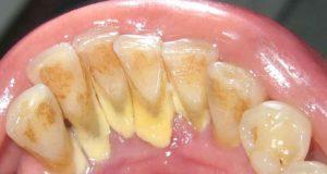 هادو هوما الزيوت الرااائعة لي كنحيد بيهم الجير ديال الأسنان بدون طبيب