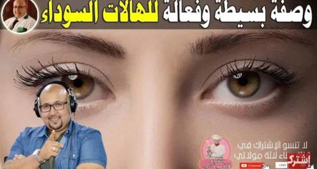 لي قهروها الهالات السوداء تحت العين تبع الوصفة لي نصح بها الدكتور عماد ميزاب دقة بطلة