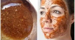 بشرتك دهنية ووجهك فيه الحبوب؟ هذا هو الحل ماسك عجيب يغذي يبيض ويزيل البثور