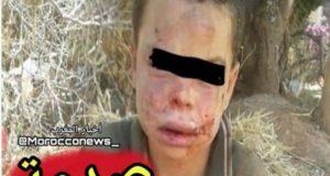 إصدار حكم مخفف في حق الأب الذي عذب ابنه ورمى به في الفرن يثير غضب المغاربة
