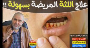 كريم عابد العلوي يقدم وصفة خارقة لعلاج اللثة المريضة و نزيف الأسنان