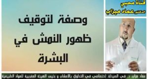 لي بدا يبان عندها النمش والطبايع تبع وصفة الدكتور عماد ميزاب شكروها الناس بزاف دقة بطلة