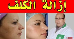 طريقة إزالة الكلف البقع والبثور طبيعيا مع الدكتور عماد ميزاب